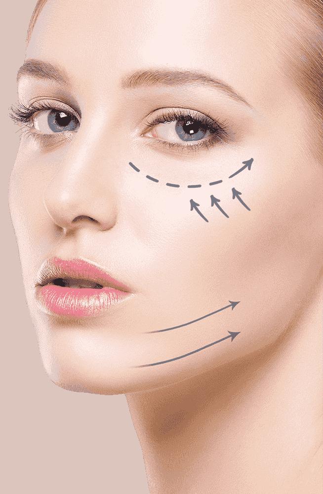 Silhouette Cirugía Estética – Dr  Ernesto Castellanos Muños